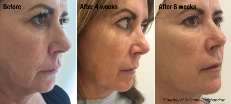 Profhilo-treatment-before-and-after2